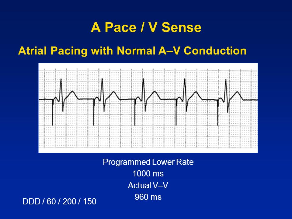 A Pace / V Sense DDD / 60 / 200 / 150 Atrial Pacing with Normal A–V Conduction Programmed Lower Rate 1000 ms Actual V–V 960 ms