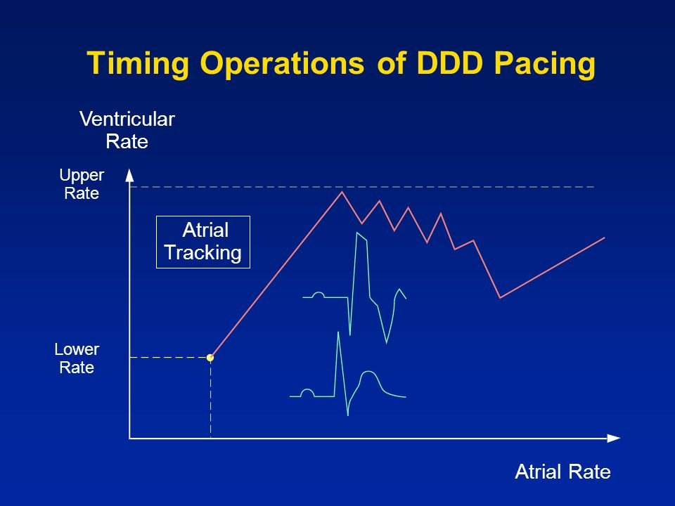 Timing Operations of DDD Pacing Upper Rate Lower Rate Atrial Rate Ventricular Rate Atrial Tracking