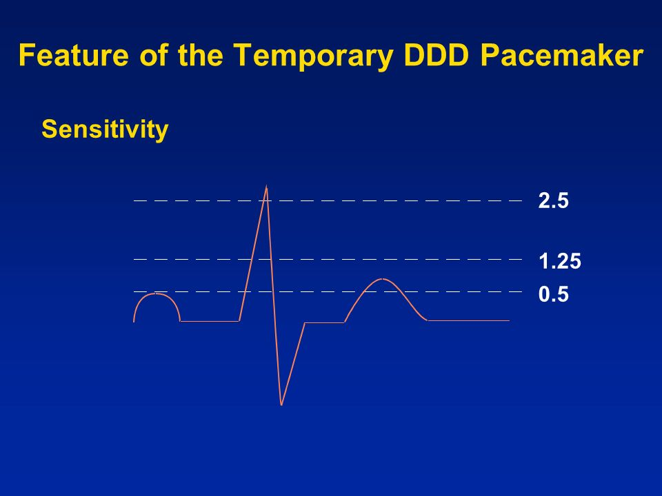 Feature of the Temporary DDD Pacemaker 2.5 1.25 0.5 Sensitivity