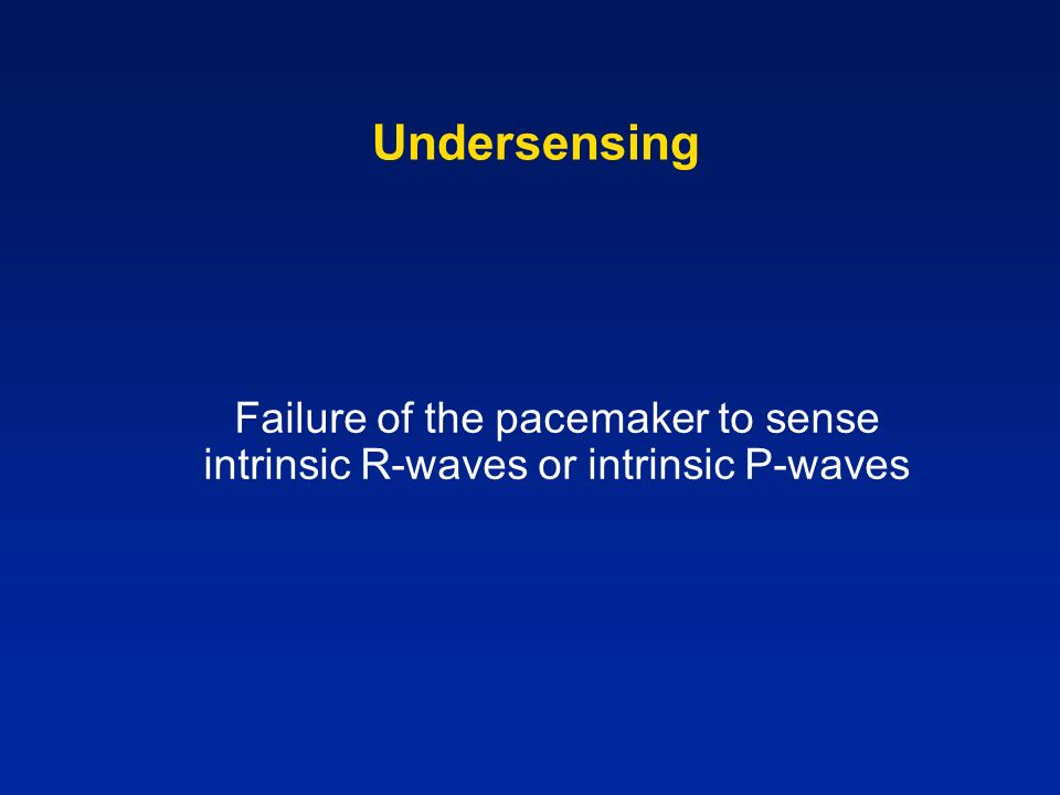 Undersensing Failure of the pacemaker to sense intrinsic R-waves or intrinsic P-waves