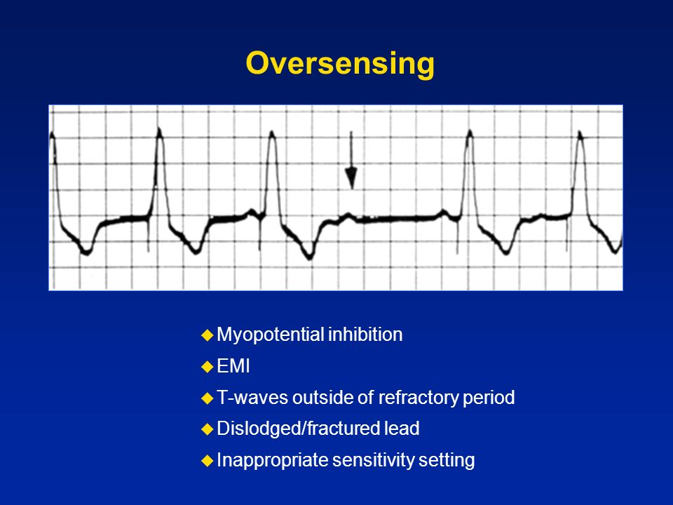 Oversensing Myopotential inhibition EMI T-waves outside of refractory period Dislodged/fractured lead Inappropriate sensitivity setting