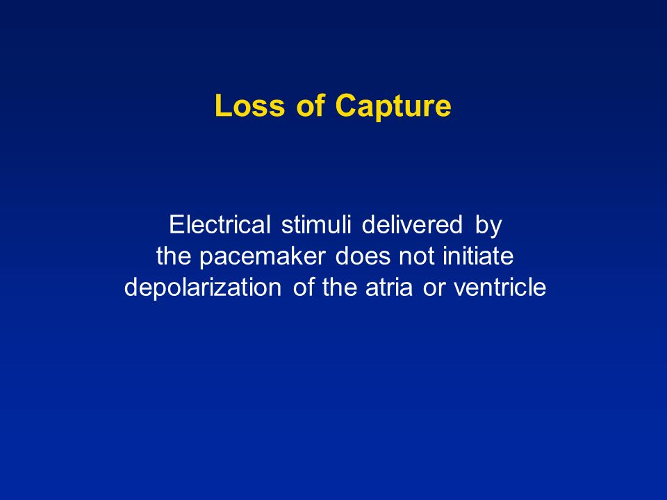 Loss of Capture Electrical stimuli delivered by the pacemaker does not initiate depolarization of the atria or ventricle
