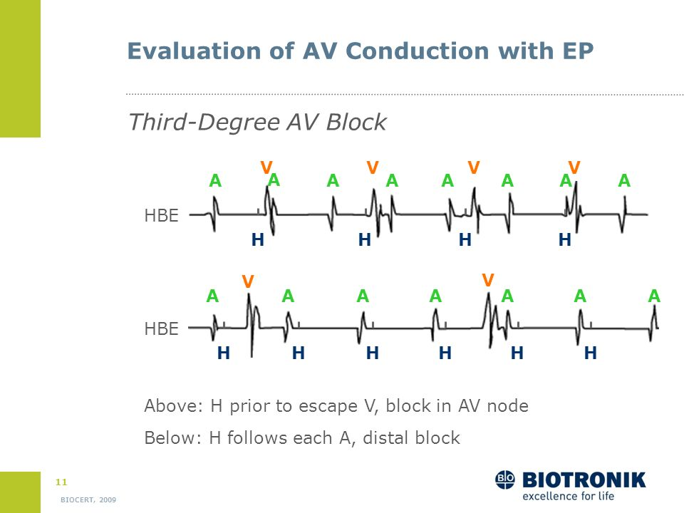 10 BIOCERT, 2009 Evaluation of AV Conduction with EP Second Degree AV Block Type Mobitz HBE Dropped beat after H spike No prior prolongation in AH or