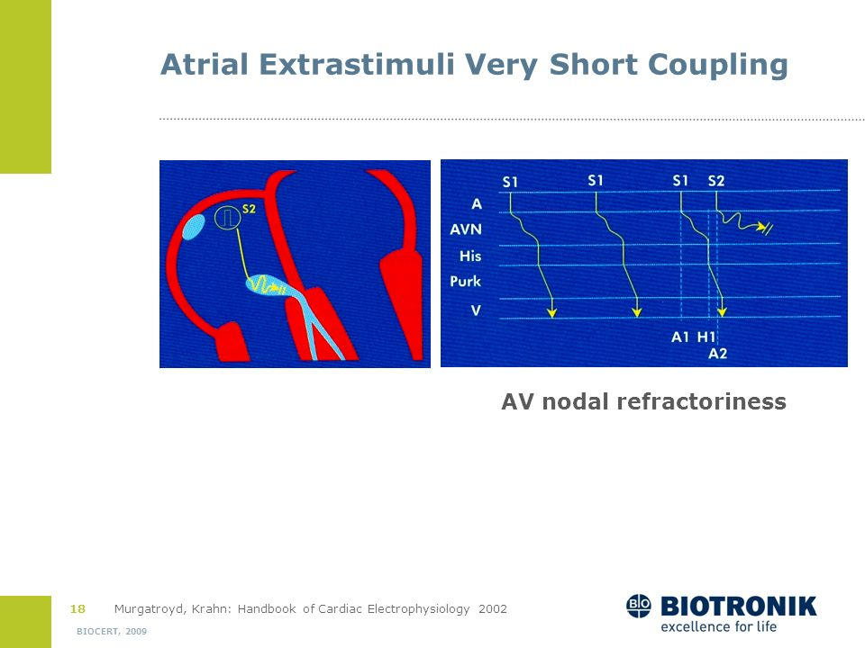 17 BIOCERT, 2009 Atrial Extrastimuli with Shorter Coupling Atrial escape: inverted P in aVF, earliest in CS*S1S1 = 500 ms, S1S2 = 300 msH1V1 H2V2 50 m