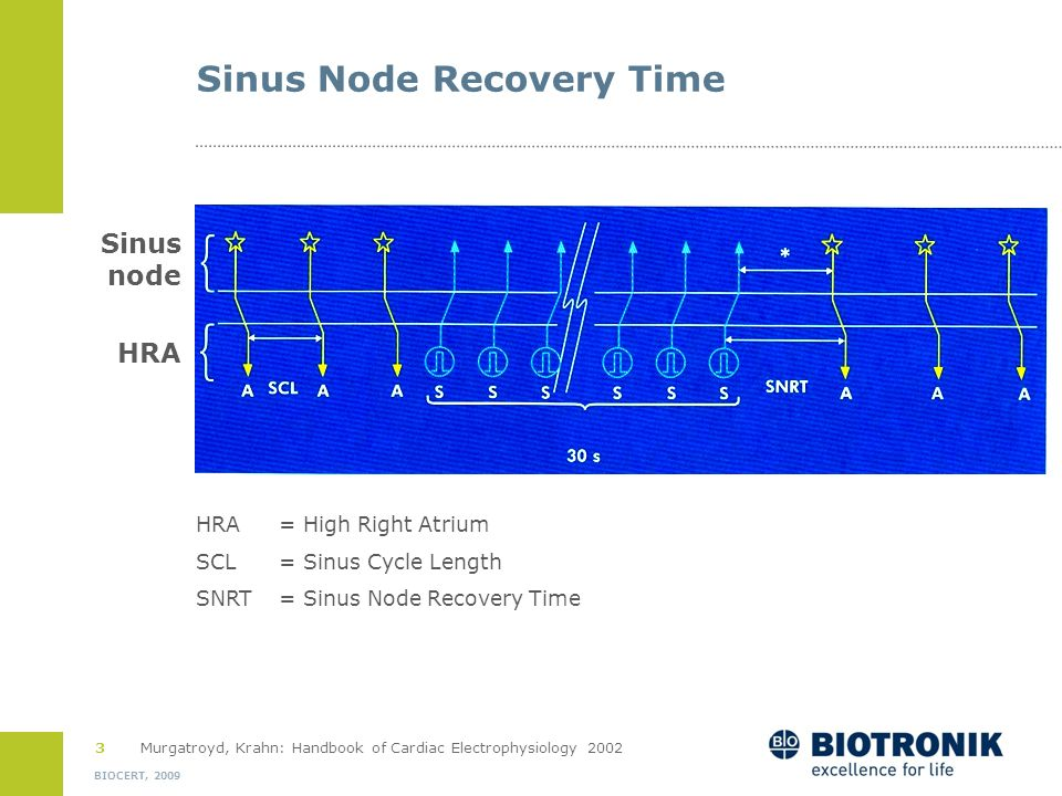 2 BIOCERT, 2009 Tests of Sinus Node Function Sinus Node Recovery Time = SNRT Test of intrinsic function Atrial overdrive pacing (30 sec) Time from las