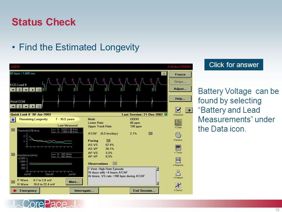 10 Battery Voltage can be found by selecting Battery and Lead Measurements under the Data icon.