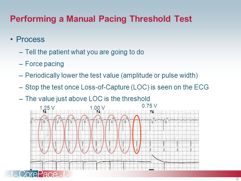 18 Performing a Manual Pacing Threshold Test Process –Tell the patient what you are going to do –Force pacing –Periodically lower the test value (ampl