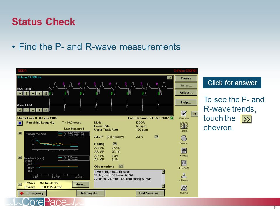 19 Click for answer To see the P- and R-wave trends, touch the chevron. Status Check Find the P- and R-wave measurements