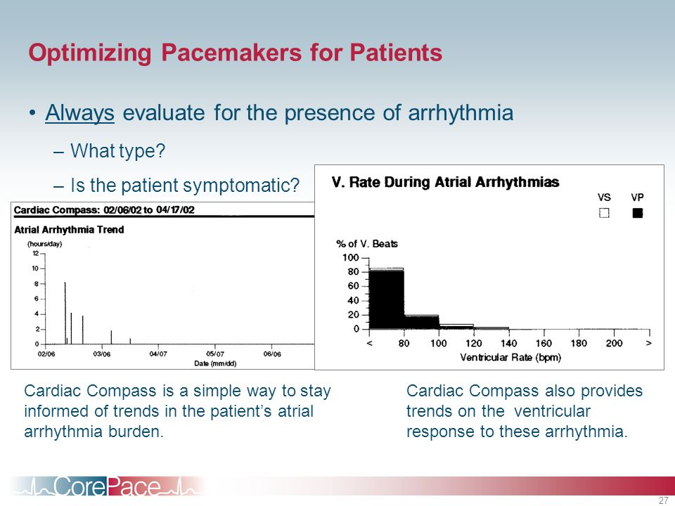 27 Optimizing Pacemakers for Patients Always evaluate for the presence of arrhythmia –What type? –Is the patient symptomatic? Cardiac Compass is a sim