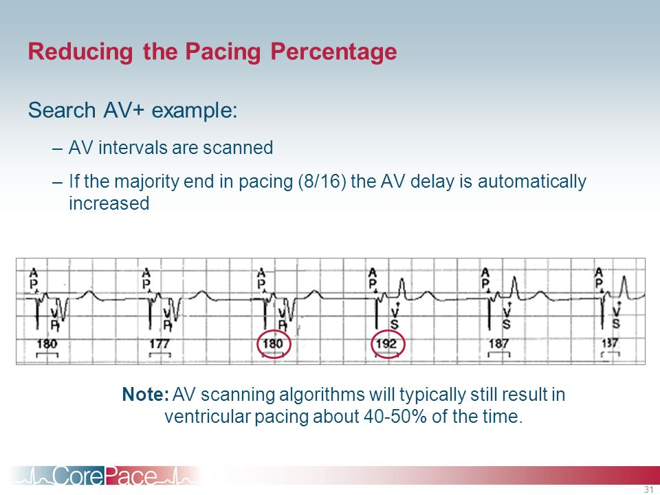 31 Reducing the Pacing Percentage Search AV+ example: –AV intervals are scanned –If the majority end in pacing (8/16) the AV delay is automatically in