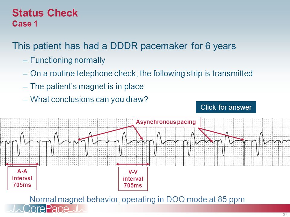 37 Status Check Case 1 This patient has had a DDDR pacemaker for 6 years –Functioning normally –On a routine telephone check, the following strip is transmitted –The patients magnet is in place –What conclusions can you draw.