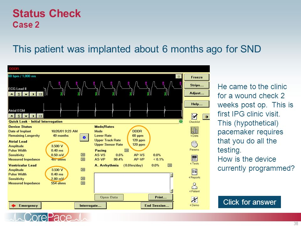 38 Status Check Case 2 This patient was implanted about 6 months ago for SND He came to the clinic for a wound check 2 weeks post op. This is first IP