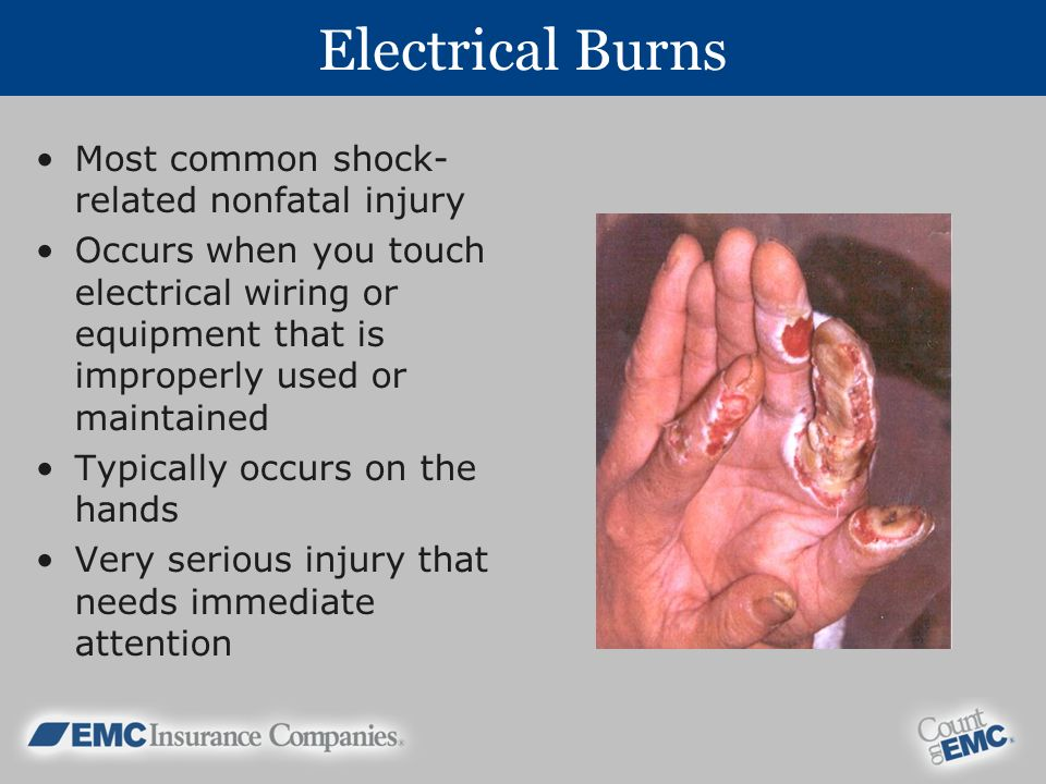 Electrical Burns Most common shock- related nonfatal injury Occurs when you touch electrical wiring or equipment that is improperly used or maintained Typically occurs on the hands Very serious injury that needs immediate attention