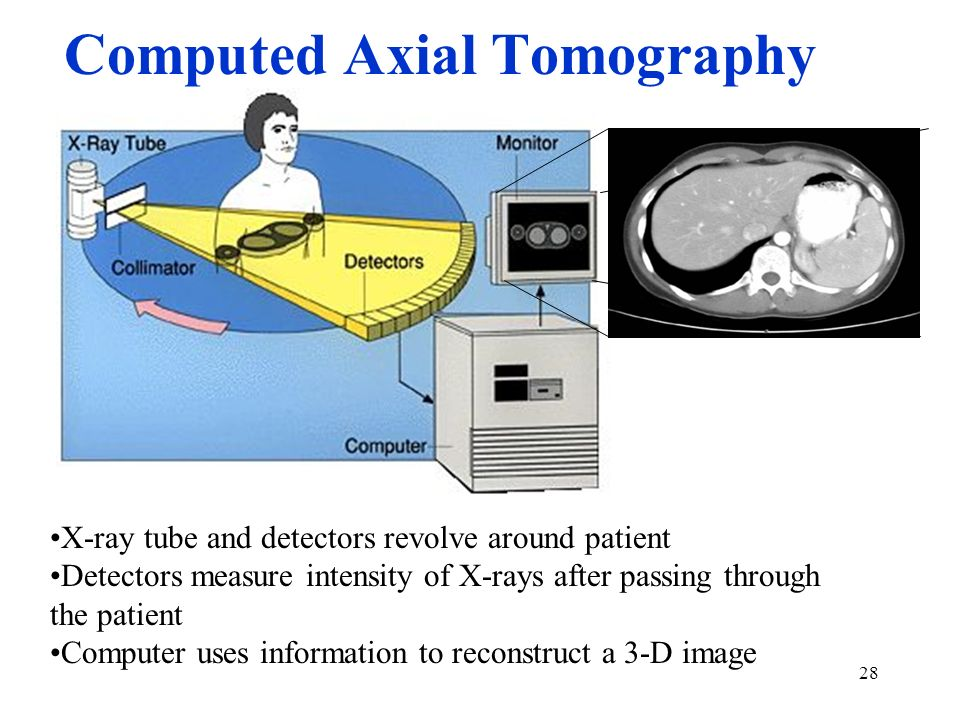 28 Computed Axial Tomography X-ray tube and detectors revolve around patient Detectors measure intensity of X-rays after passing through the patient C