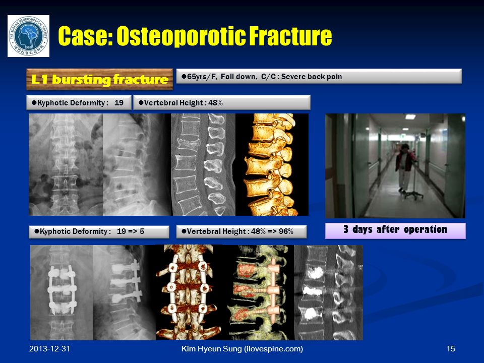 Kim Hyeun Sung (ilovespine.com) Kyphotic Deformity : 19 => 5 Kyphotic Deformity : 19 Vertebral Height : 48% Vertebral Height : 48% => 96% 65yrs/F, Fall down, C/C : Severe back pain L1 bursting fracture Case: Osteoporotic Fracture 3 days after operation 2013-12-31 15