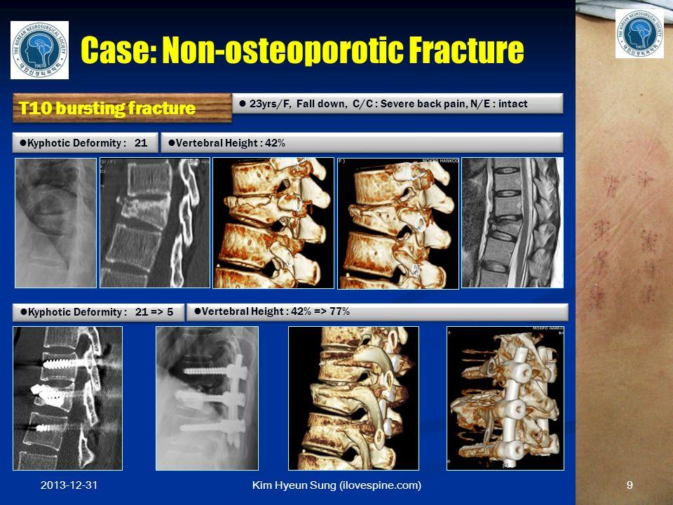 Kim Hyeun Sung (ilovespine.com) 23yrs/F, Fall down, C/C : Severe back pain, N/E : intact Kyphotic Deformity : 21 => 5 Kyphotic Deformity : 21 Vertebra