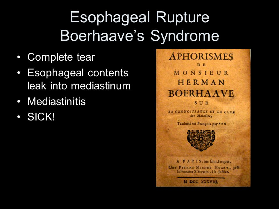 Esophageal Rupture Boerhaaves Syndrome Complete tear Esophageal contents leak into mediastinum Mediastinitis SICK!