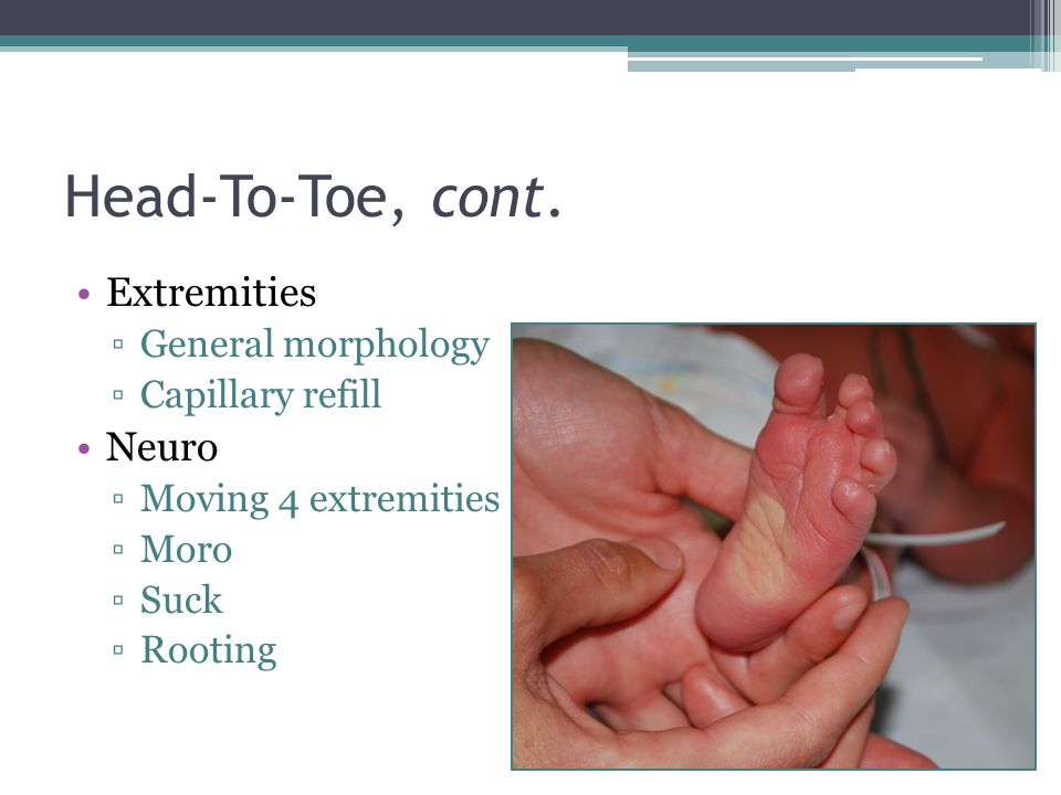 Head-To-Toe, cont. Extremities General morphology Capillary refill Neuro Moving 4 extremities Moro Suck Rooting