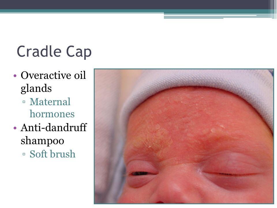 Cradle Cap Overactive oil glands Maternal hormones Anti-dandruff shampoo Soft brush