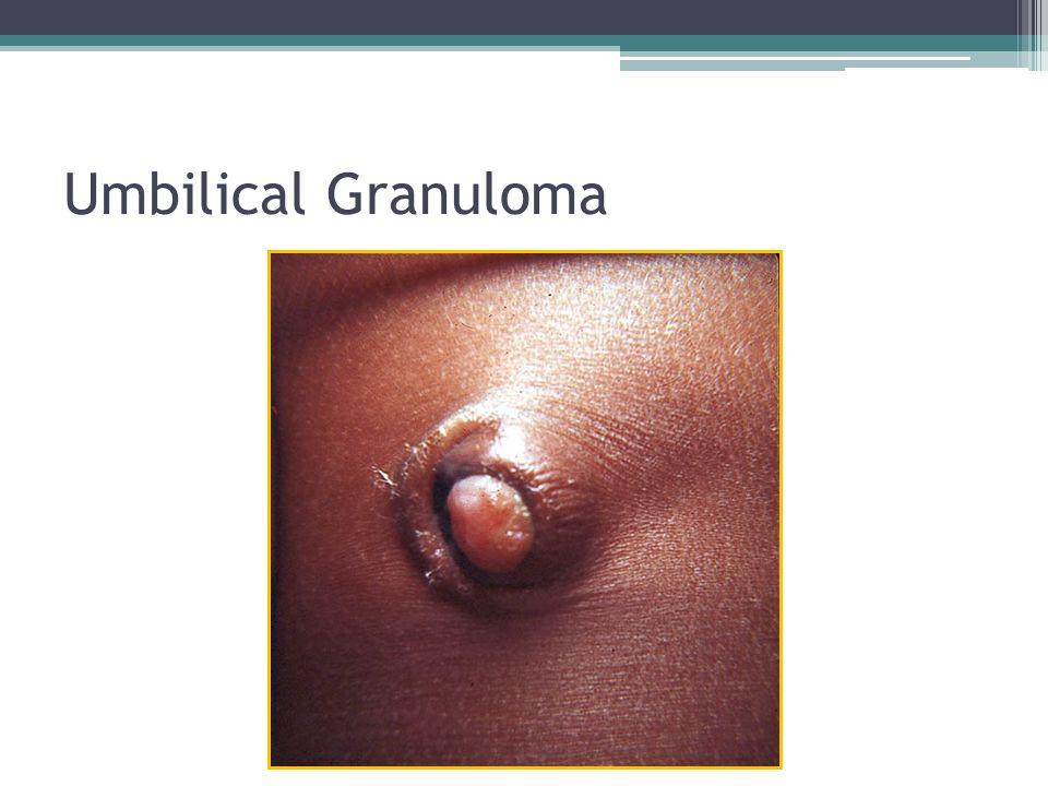Umbilical Granuloma