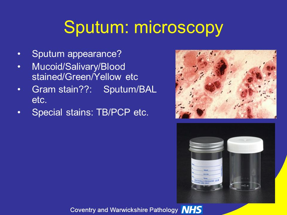 Coventry and Warwickshire Pathology Sputum: microscopy Sputum appearance? Mucoid/Salivary/Blood stained/Green/Yellow etc Gram stain??:Sputum/BAL etc.
