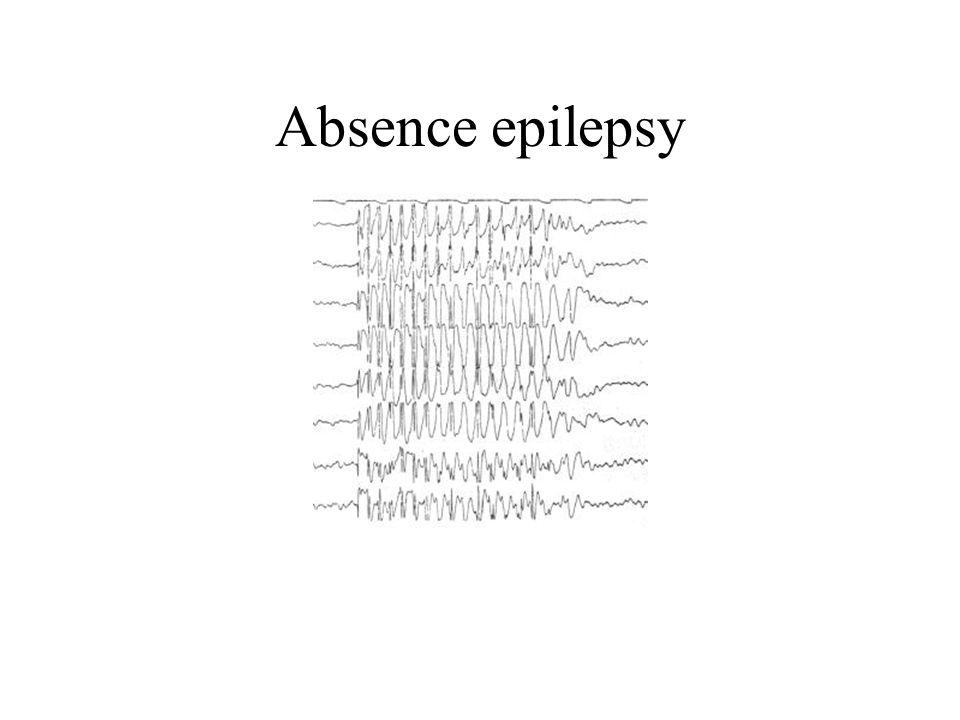 Absence epilepsy