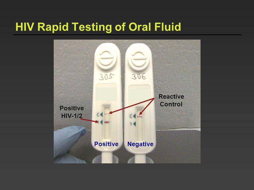 PositiveNegative Reactive Control HIV Rapid Testing of Oral Fluid Positive HIV-1/2
