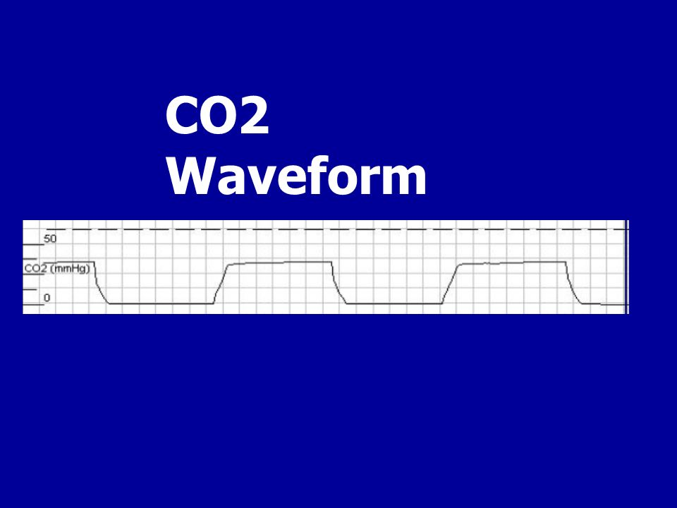 CO2 Waveform