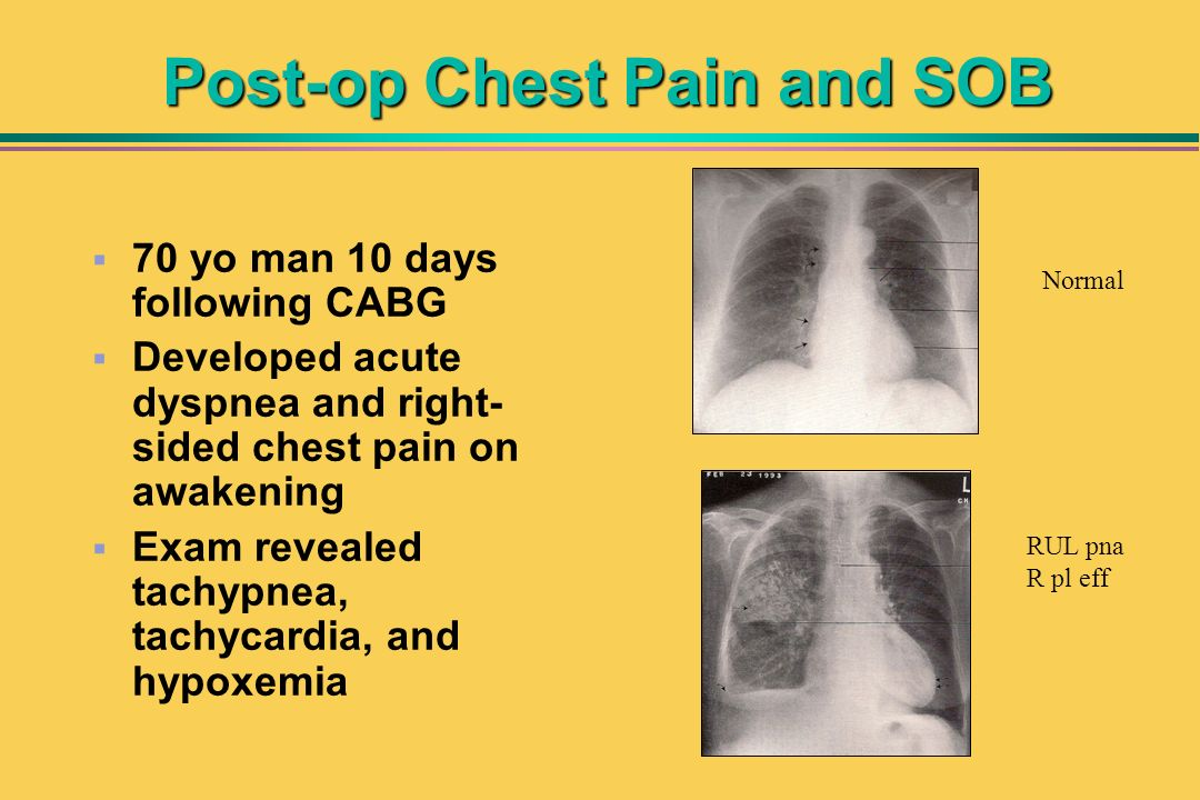 Post-op Chest Pain and SOB 70 yo man 10 days following CABG Developed acute dyspnea and right- sided chest pain on awakening Exam revealed tachypnea,