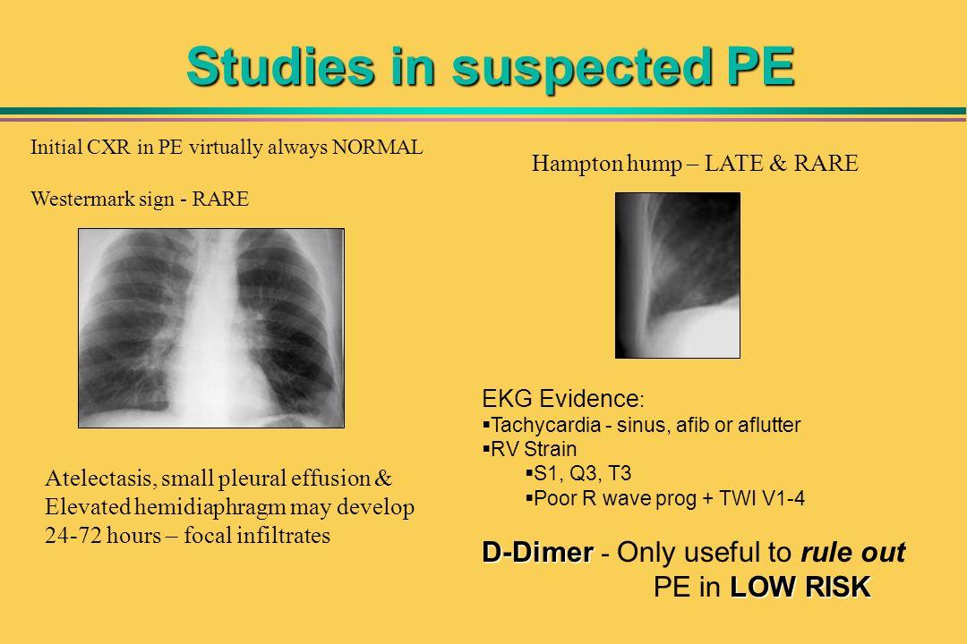 Studies in suspected PE EKG Evidence : Tachycardia - sinus, afib or aflutter RV Strain S1, Q3, T3 Poor R wave prog + TWI V1-4 D-Dimer D-Dimer - Only u
