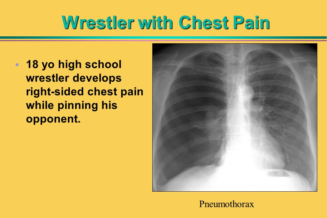 Wrestler with Chest Pain 18 yo high school wrestler develops right-sided chest pain while pinning his opponent. Pneumothorax