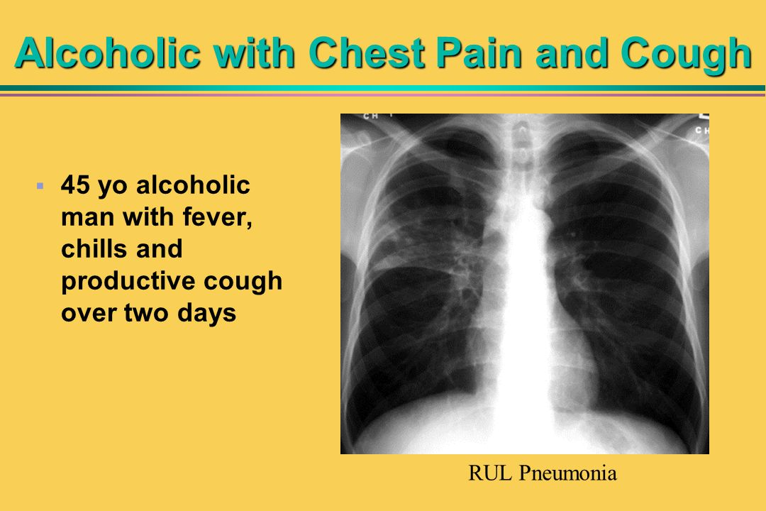 Alcoholic with Chest Pain and Cough 45 yo alcoholic man with fever, chills and productive cough over two days RUL Pneumonia