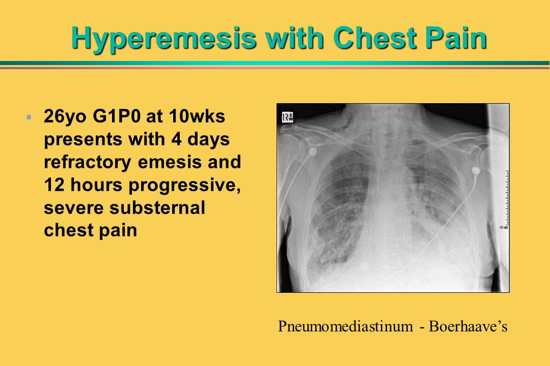 Hyperemesis with Chest Pain 26yo G1P0 at 10wks presents with 4 days refractory emesis and 12 hours progressive, severe substernal chest pain Pneumomed
