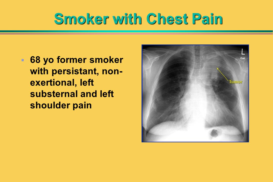 Smoker with Chest Pain 68 yo former smoker with persistant, non- exertional, left substernal and left shoulder pain
