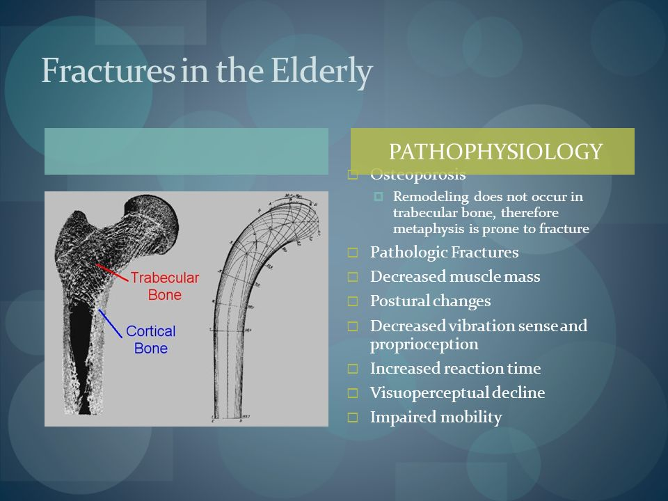 Fractures in the Elderly Osteoporosis Remodeling does not occur in trabecular bone, therefore metaphysis is prone to fracture Pathologic Fractures Dec