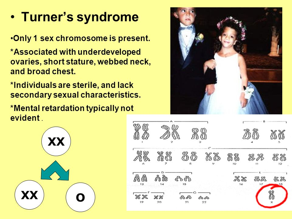 Turners syndrome XX O Only 1 sex chromosome is present. *Associated with underdeveloped ovaries, short stature, webbed neck, and broad chest. *Individ