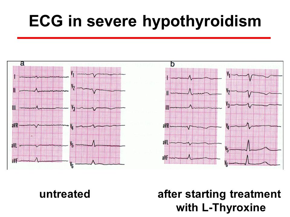 after starting treatment with L-Thyroxine untreated ECG in severe hypothyroidism