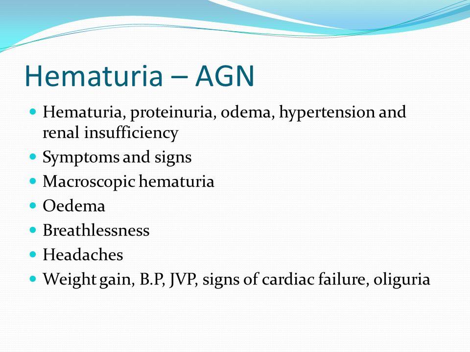Hematuria – AGN Hematuria, proteinuria, odema, hypertension and renal insufficiency Symptoms and signs Macroscopic hematuria Oedema Breathlessness Hea