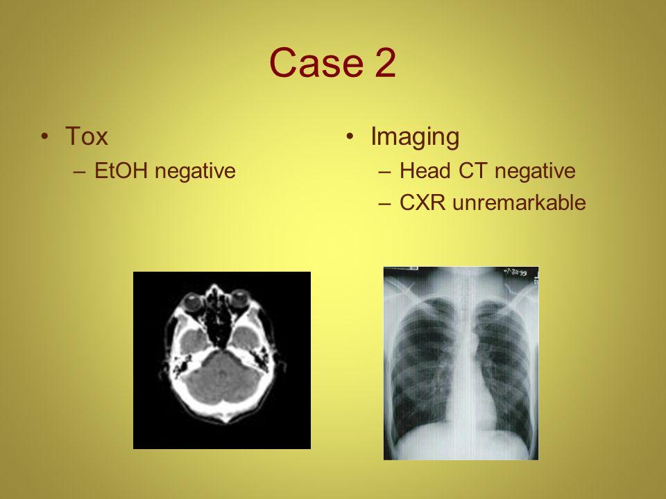 Case 2 Tox –EtOH negative Imaging –Head CT negative –CXR unremarkable