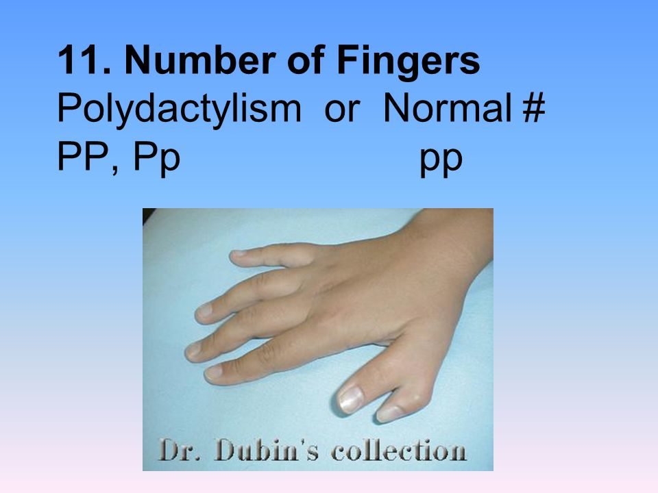 11. Number of Fingers Polydactylism or Normal # PP, Pp pp