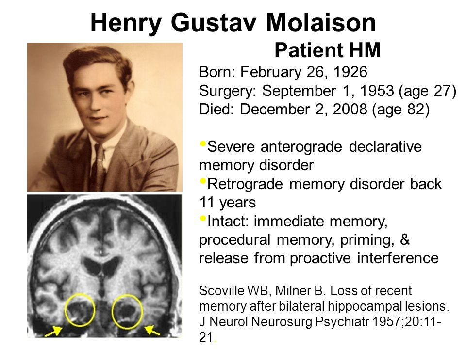 Henry Gustav Molaison Patient HM Born: February 26, 1926 Surgery: September 1, 1953 (age 27) Died: December 2, 2008 (age 82) Severe anterograde declar