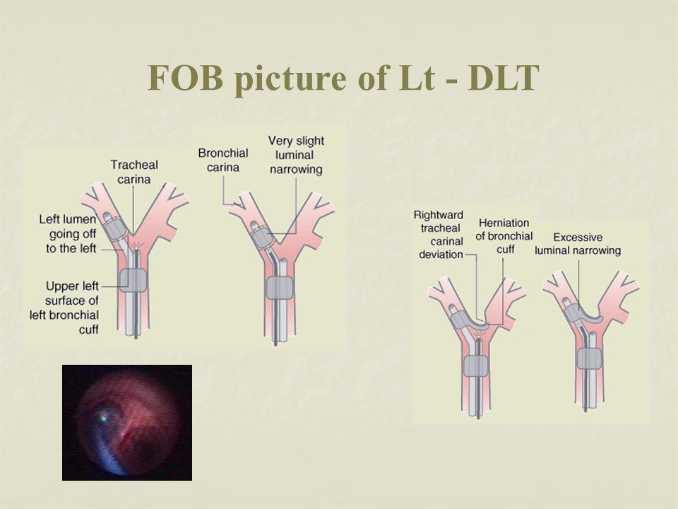FOB picture of Lt - DLT