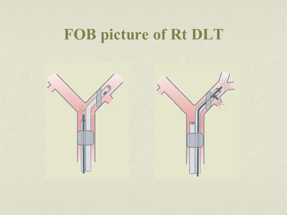 FOB picture of Rt DLT