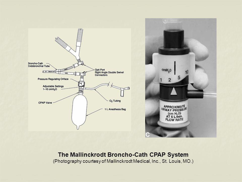 The Mallinckrodt Broncho-Cath CPAP System (Photography courtesy of Mallinckrodt Medical, Inc., St. Louis, MO.)