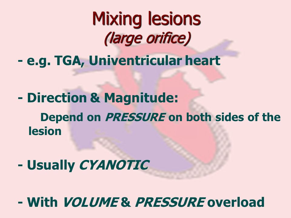 Mixing lesions (large orifice) - e.g. TGA, Univentricular heart - Direction & Magnitude: Depend on PRESSURE on both sides of the lesion - Usually CYAN