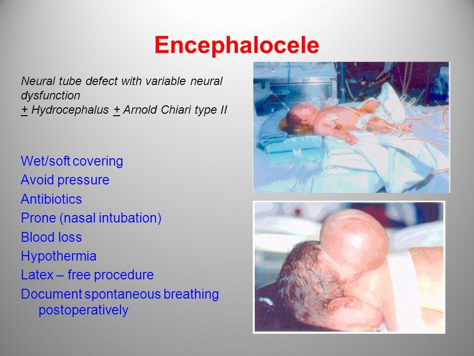 Encephalocele Wet/soft covering Avoid pressure Antibiotics Prone (nasal intubation) Blood loss Hypothermia Latex – free procedure Document spontaneous