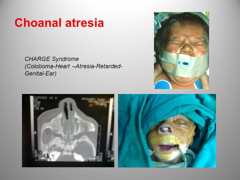 Choanal atresia OGT CHARGE Syndrome (Coloboma-Heart –Atresia-Retarded- Genital-Ear)