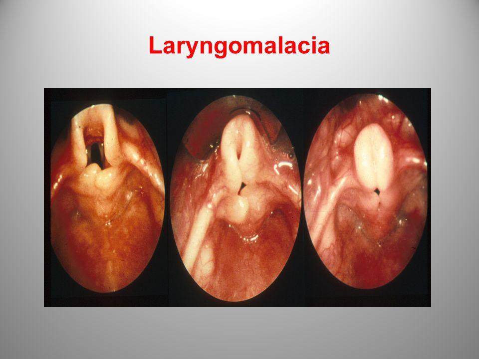Laryngomalacia