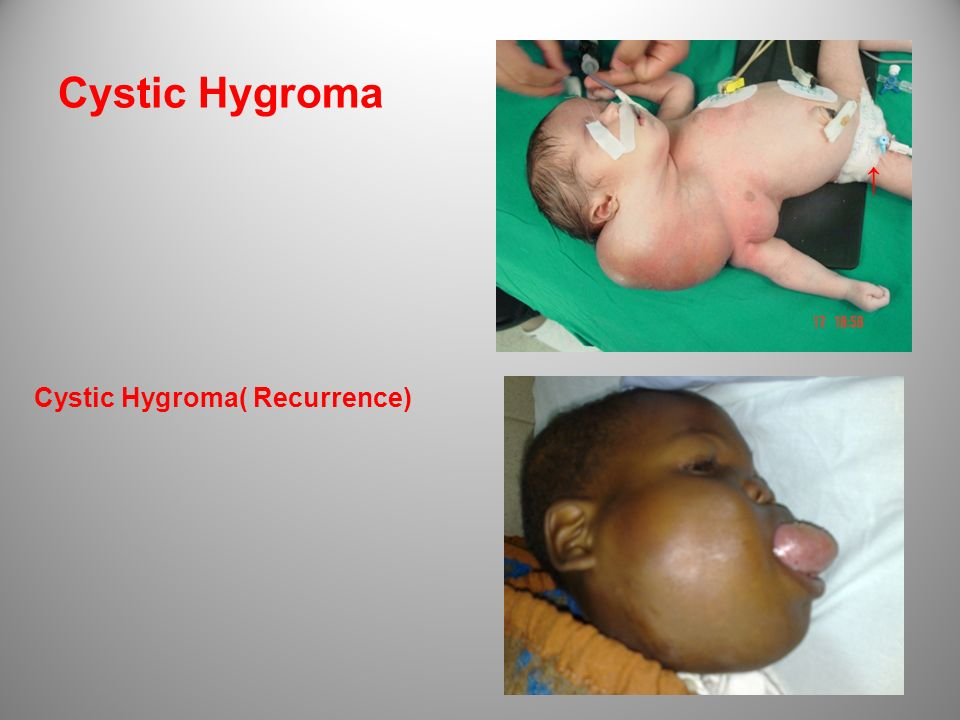 Cystic Hygroma Cystic Hygroma( Recurrence)