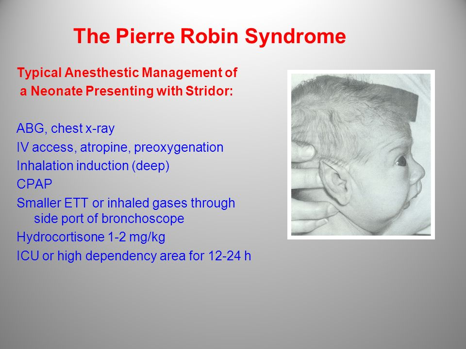 The Pierre Robin Syndrome Typical Anesthestic Management of a Neonate Presenting with Stridor: ABG, chest x-ray IV access, atropine, preoxygenation In